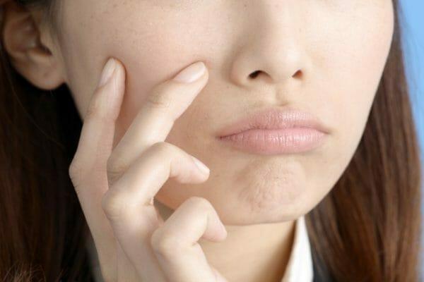 免疫力低下が原因で肌荒れに悩む女性のイメージ