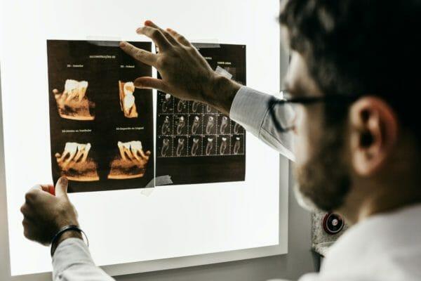 手足の痺れを医学的に検証する医師のイメージ